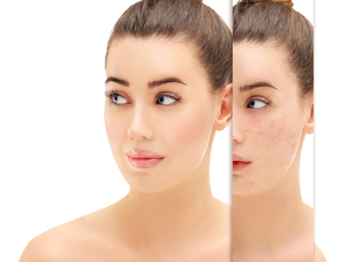 Don't Let Acne Rob You Of Your Self-Esteem