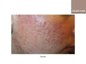 Papules pimples treatment
