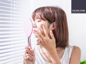 acne breakout lockdown skin