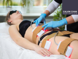 i-lipo calvin chan trifecta body treatment